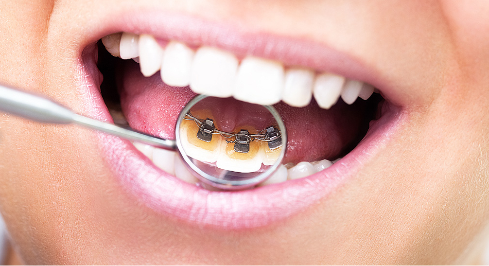 timothy g mahoney dds patients have a choice in dental fillings