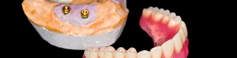 tooth replacement for the 21st century