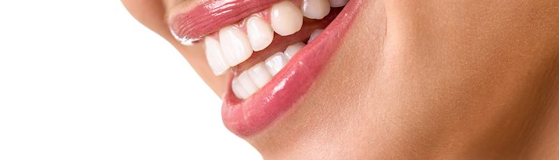 replace old silver fillings