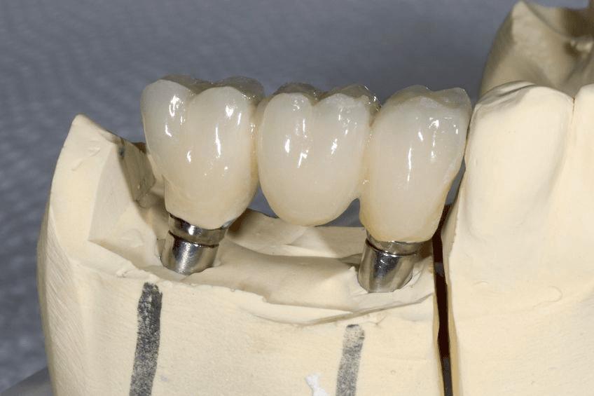 behind the scenes dental crown fabrication