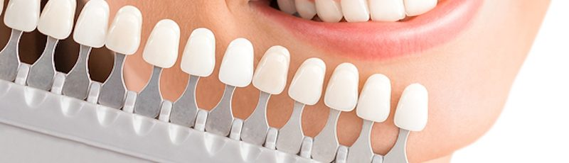 all tooth stains are not created equal