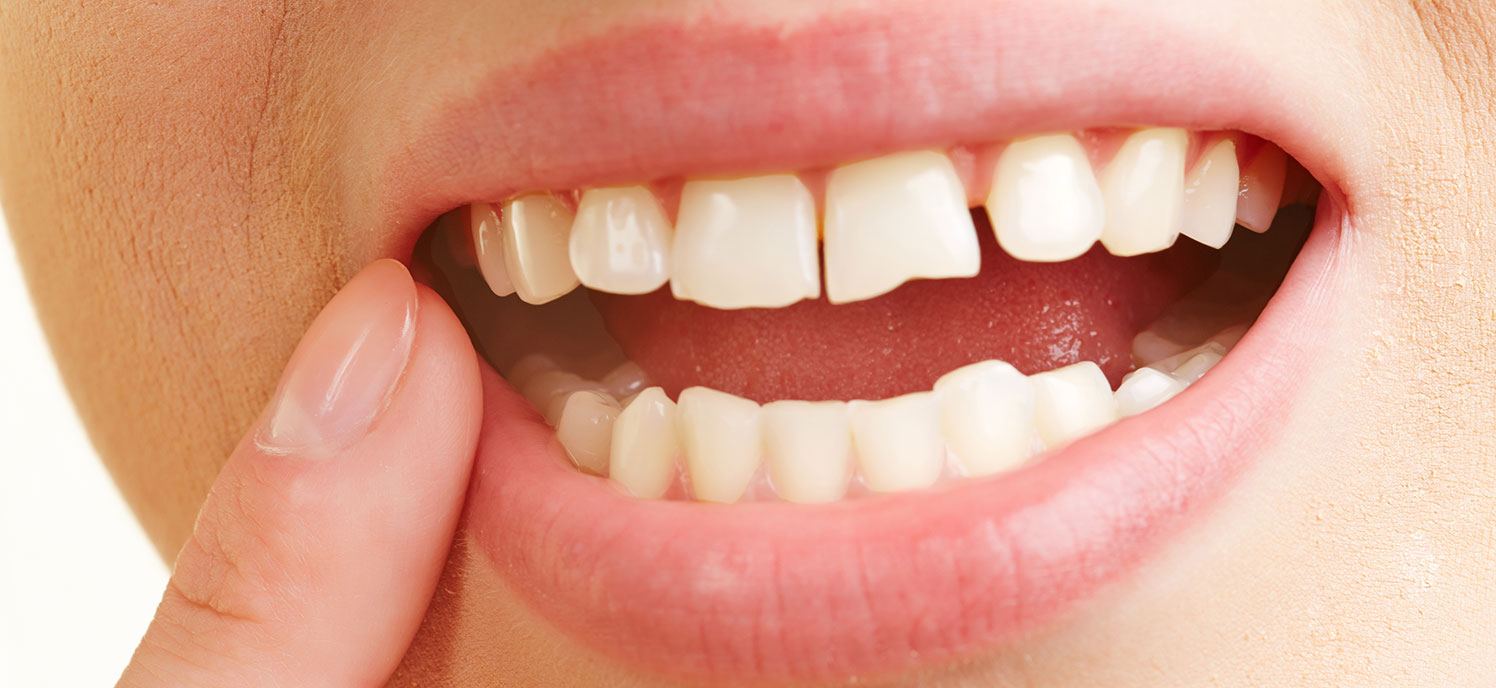 how oral inflammation affects your health