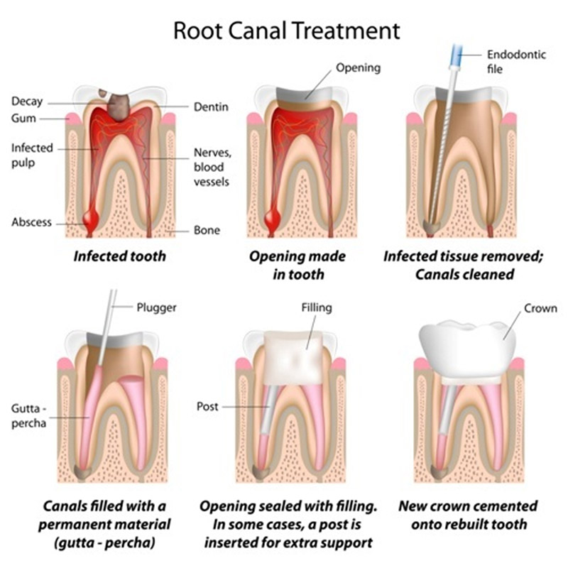 root-canal-therapy in wetaskiwin